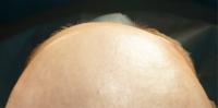 Вид пациента через 1 месяц после лечения
