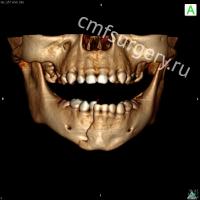 Компьютерная томография пациента дооперативного лечения