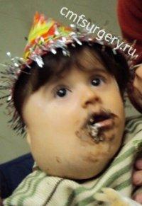 Внешний вид ребёнка в возрасте 2,5 лет