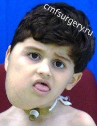 Лимфатическая мальформация правой половины лица, шеи, языка