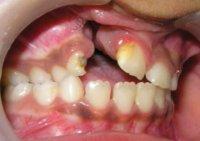 Ребенок среднего возраста с расщелиной АОВЧ (расщелина верхней губы устранена).