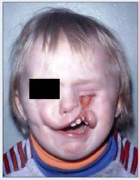 Двусторонняя косая расщелина лица: неполная справа, полная слева. Расщелина альвеолярного отростка верхней челюсти слева.
