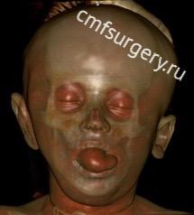 КТ после операции