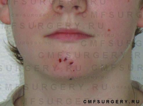 Больной К. 11 лет.  После лечения. DS: Фурункул подбородочной област.