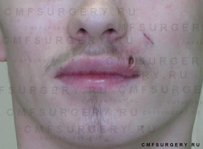 Фурункул в области верхней губы флебит лицевой  вены слева.