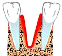 Альвеолит челюсти у детей