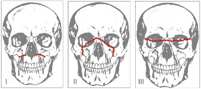 Переломы верхней челюсти по Ле-Фор
