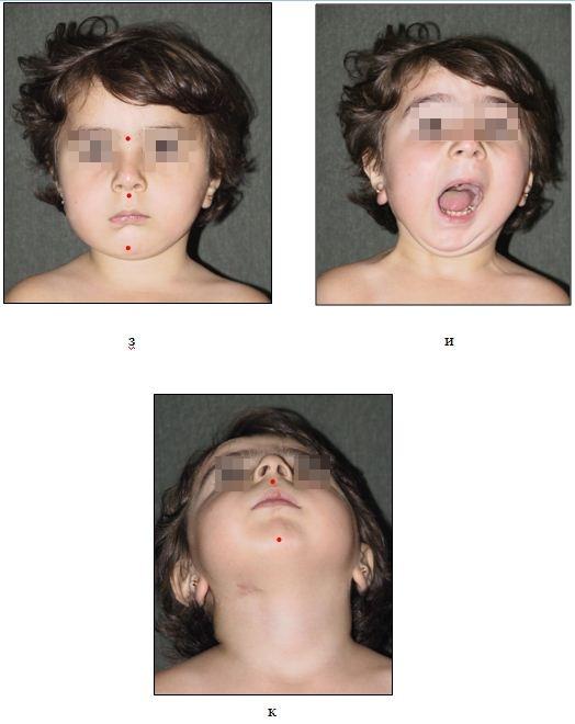 Рис. 33 (з – к): з, и, к) – та же пациентка после дистракции ветви нижней челюсти справа   и артропластики ВНЧС аутотрансплантатом из венечного отростка.
