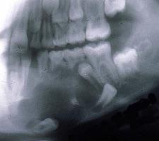 Первичная киста (кератокиста)