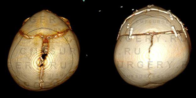 Сравнение 3D КТ реконструкций черепа до и после операции.