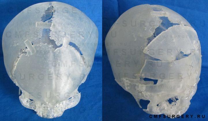 Стереолиграфическая модель черепа пациента до и после планирования операции.