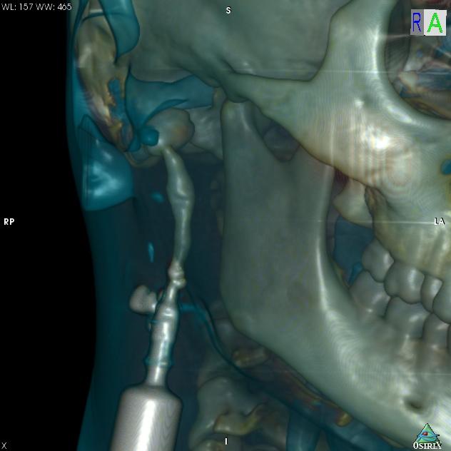 МСКТ с контрастированием. 3D реконструкция кисты и свищевого хода